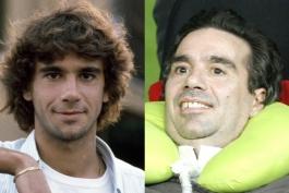 """استفانو بورگونوو. قبل و بعد از ابتلا به بیماری """"ALS"""""""